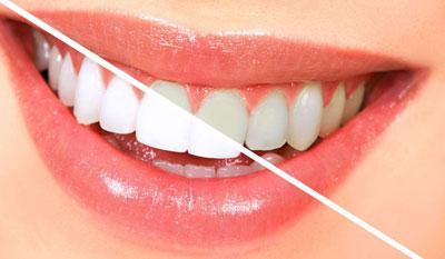 این 6 عادت باعث زرد شدن دندان ها می شوند